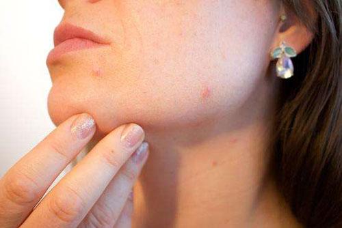 痘痘长在脸上的位置意味着什么
