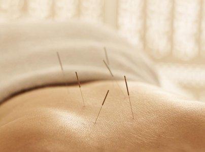 针灸是如何治病的 仍是未解之谜