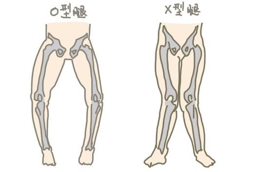 O型腿的原因是什么?如何矫正O型腿