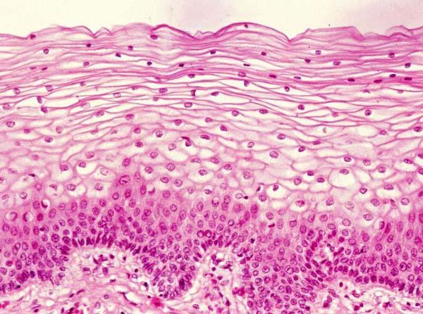 只能活1天的小肠绒毛营养吸收细胞